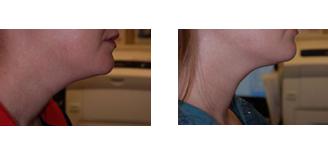 BOTOX Cosmetic   Tucson, Arizona   Ironwood Dermatology
