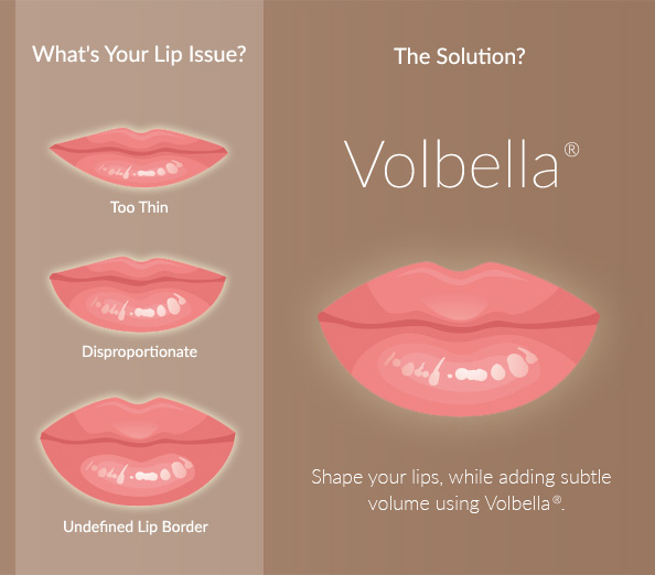Volbella® from Tucson's Ironwood Dermatology can address a range of lip issues.