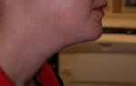 Kybella Treatment: Case 1 Before