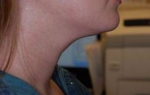 Kybella Treatment: Case 1 After