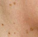 Seborrheic Keratosis: Case 2 Before