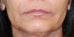 Dermal Fillers: Case 1 Before