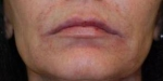 Dermal Fillers: Case 1 After