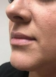 Dermal Fillers: Case 2 Before