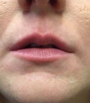 Dermal Fillers: Case 5 Before