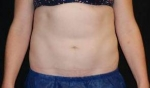CoolSculpting Case: 1 After