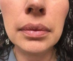 Dermal Fillers: Case 7 Before