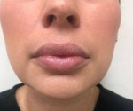 Dermal Fillers: Case 7 After