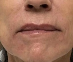 Dermal Fillers: Case 8 After