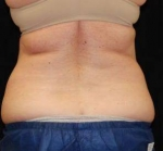CoolSculpting Case: 2 Before