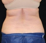 CoolSculpting Case: 2 After