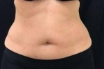 CoolSculpting Case: 4 After